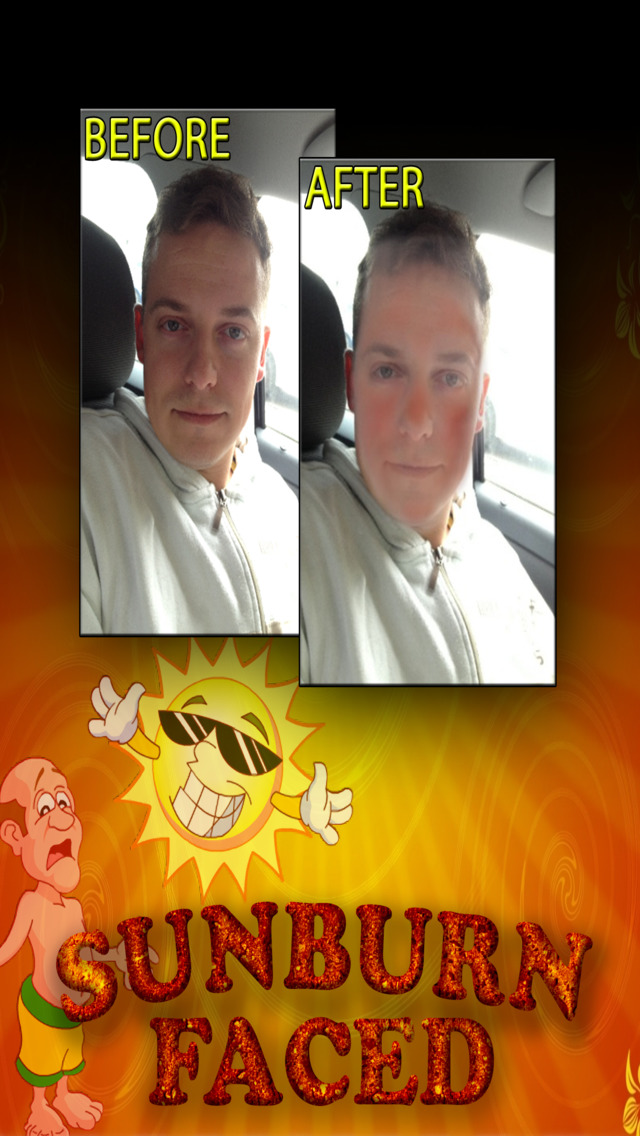 SunburnFaced – The Fake Sunburn Photo FX Booth